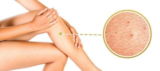 Des solutions efficaces et naturelles pour se débarrasser des poils incarnés