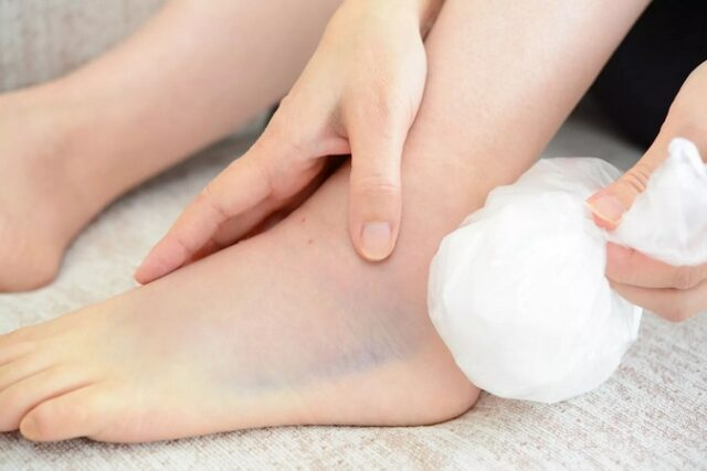Poser la glace sur une blessure musculaire, ce n'est pas une bonne idée