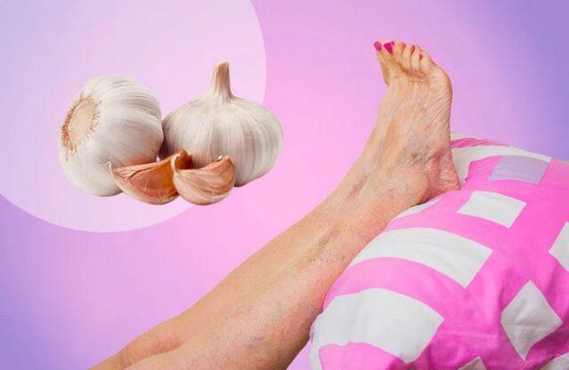 Voici un traitement naturel à base de l'ail pour les varices aux jambes