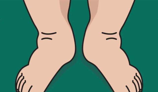 4 Moyens naturels pour soulager le gonflement des pieds et des chevilles