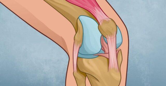 Un exercice de physiothérapie pour soulager la douleur au genou